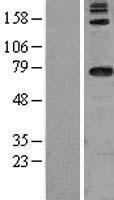 NBL1-09721 - DARS2 Lysate