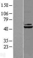 NBL1-09735 - DBT Lysate