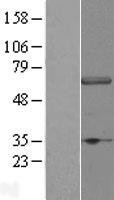 NBL1-17798 - DCAF11 Lysate