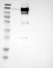 NBP1-85582 - DCBLD2