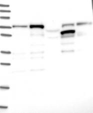 NBP1-82018 - DCP1B