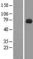 NBL1-09746 - DCP1B Lysate