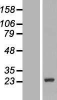 NBL1-09752 - DCTN3 Lysate