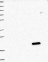 NBP1-81122 - Dynactin subunit 5