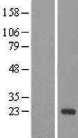 NBL1-09754 - DCTN5 Lysate