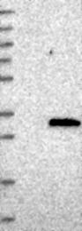 NBP1-85275 - DCUN1D1