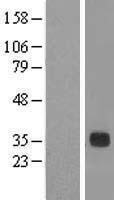 NBL1-09757 - DCUN1D3 Lysate