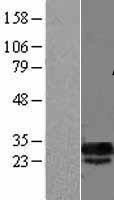 NBL1-09759 - DCUN1D5 Lysate
