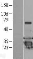 NBL1-09762 - DCXR Lysate