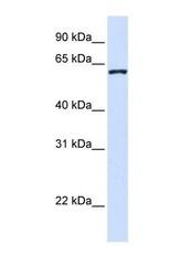 NBP1-56584 - DCAF12
