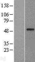 NBL1-09764 - DDB2 Lysate