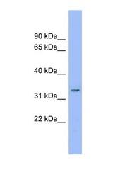NBP1-59378 - DDRGK1