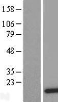 NBL1-09779 - DDT Lysate