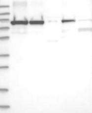 NBP1-85293 - DDX1
