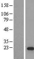 NBL1-09782 - DDX17 Lysate