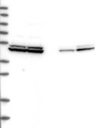 NBP1-83329 - DDX25