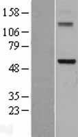 NBL1-09791 - DDX28 Lysate