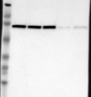 NBP1-85291 - DDX3X