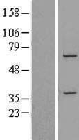 NBL1-09792 - DDX31 Lysate