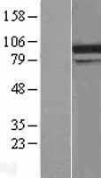 NBL1-09793 - DDX31 Lysate
