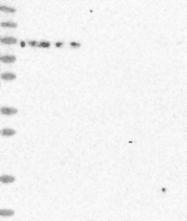 NBP1-85859 - DDX51