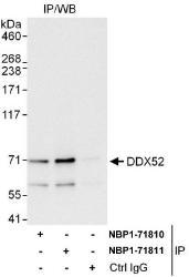 NBP1-71810 - DDX52