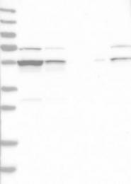 NBP1-83248 - DDX6