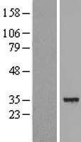 NBL1-09812 - DECR1 Lysate