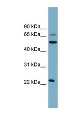 NBP1-59739 - Dectin-2