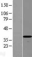 NBL1-09816 - DEDD2 Lysate