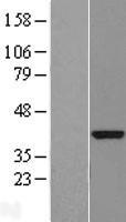 NBL1-08314 - DENND1B Lysate