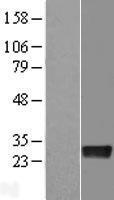 NBL1-09832 - DENR Lysate