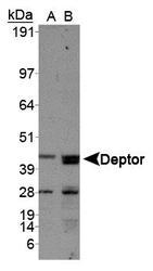 NBP1-49674 - NKX6-1
