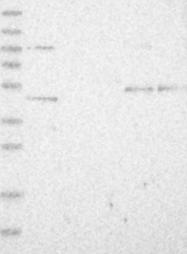 NBP1-85255 - DEPDC6 / DEPTOR