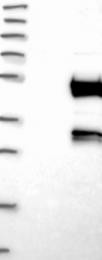 NBP1-85257 - DEPDC6 / DEPTOR