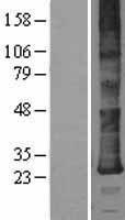 NBL1-09838 - DERL2 Lysate