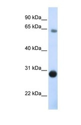 NBP1-59467 - Derlin-3