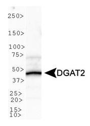 NBP1-71700 - DGAT2