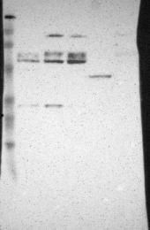 NBP1-84257 - DGCR14 / DGCR13