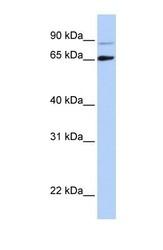 NBP1-57261 - DGCR8