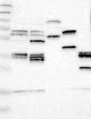 NBP1-85315 - DAG kinase epsilon