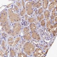 NBP1-85229 - DAG kinase eta / DGKH