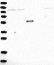 NBP1-85317 - DAG kinase theta