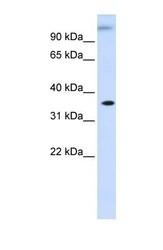 NBP1-56950 - DHDH