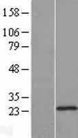 NBL1-09861 - DHFRL1 Lysate