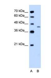 NBP1-59593 - DHOdehase
