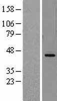 NBL1-09863 - DHODH Lysate