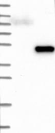 NBP1-82648 - Deoxyhypusine synthase (DHPS)