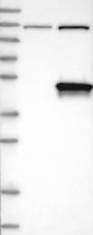 NBP1-82649 - Deoxyhypusine synthase (DHPS)