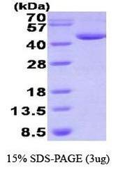 NBP1-41227 - Deoxyhypusine synthase (DHPS)